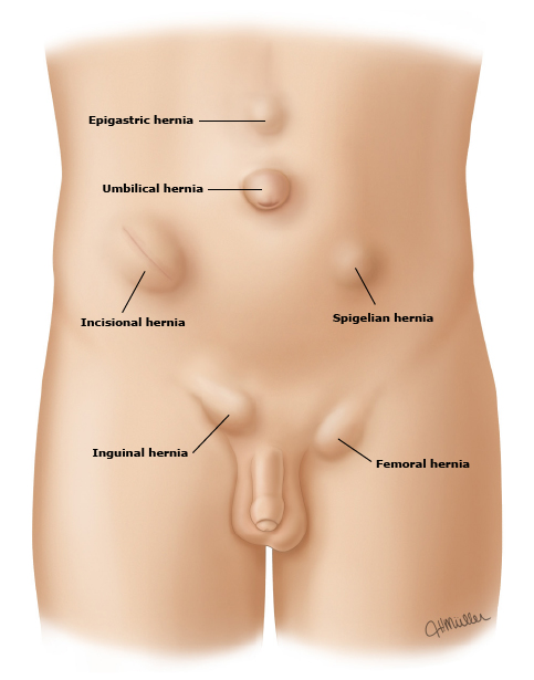 in Adult hernias